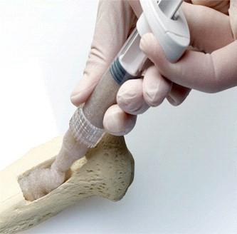 Biomateriales. Huesos y piedras