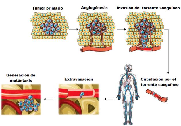 Esquema de la evolución de metástasis quimica
